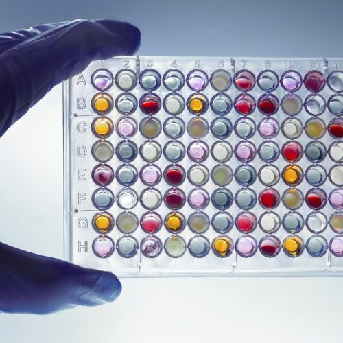 a hand with a microplate