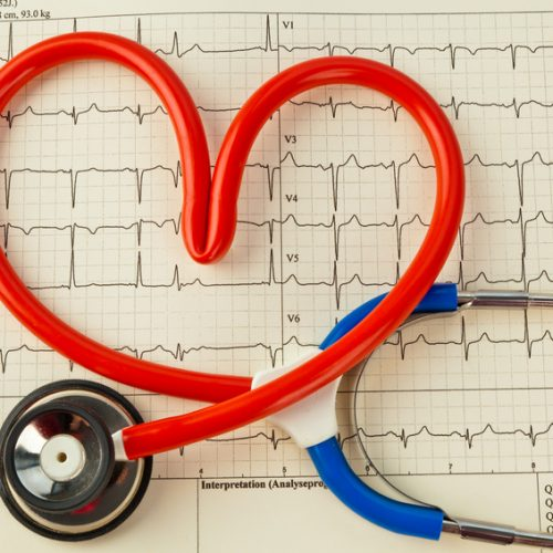 Ein Stethoskop in Herzform. Symbolfoto für Herzkrankheit und Herzinfarkt.